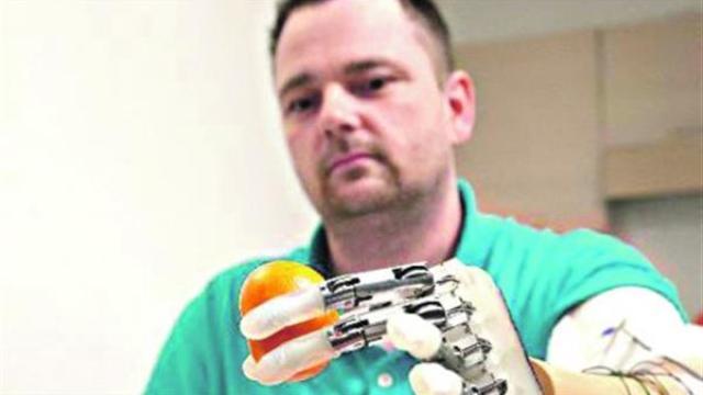 Naučnik iz Srbije konstruiše revolucionarnu bioničku ruku